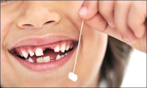 американский закон об отсутствии зуба