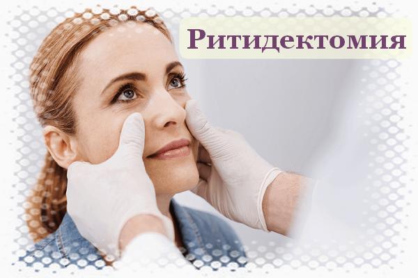 Ритидектомия